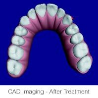 Invisalign CAD After