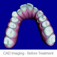 Invisalign CAD Before