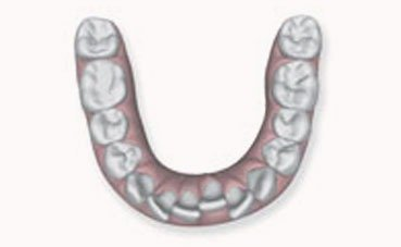 Overcrowded Invisalign Leicester