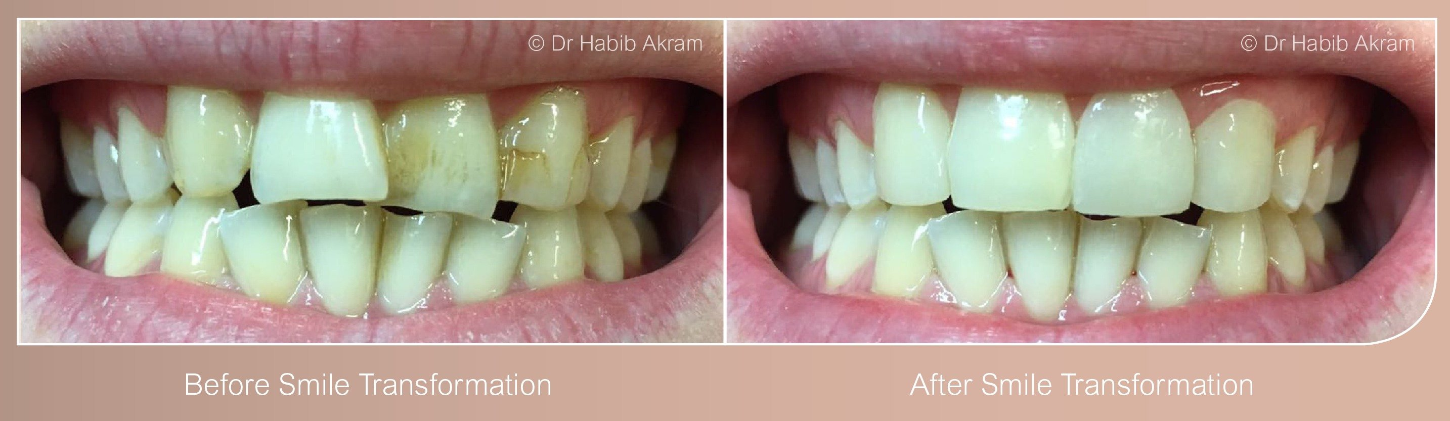 Smile Design Cosmetic Dentist Leicester
