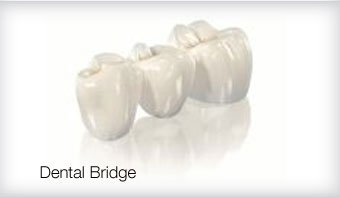 Dental Bridge Cosmetic Dentist Leicester