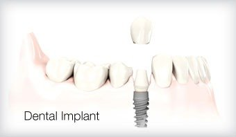 Dental Implant Leicester Treatment Option 1