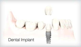 Dental Implant Leicester Treatment Option