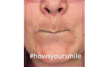 Hows Your Smile