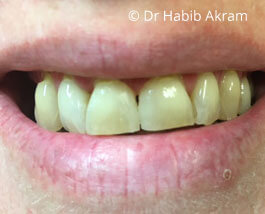 Cosmetic Dentistry 01 After