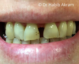 Cosmetic Dentistry 01 Before