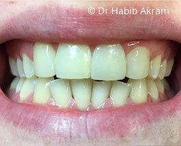 Cosmetic Dentistry 02 After