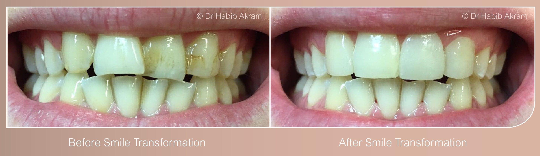 Smile-Design-Cosmetic-Dentist-Leicester - Hallcross Dental